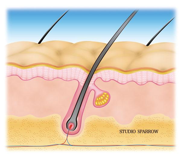 頭皮膚組織